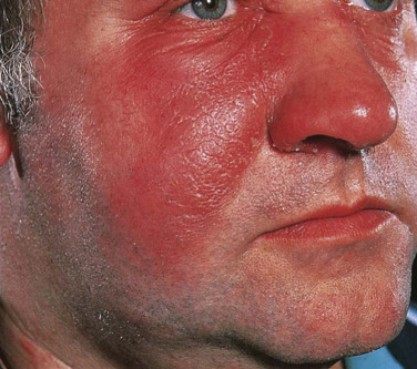 Cellulitis - an overview | ScienceDirect Topics