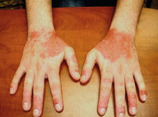 Dyshidrosis - an overview | ScienceDirect Topics
