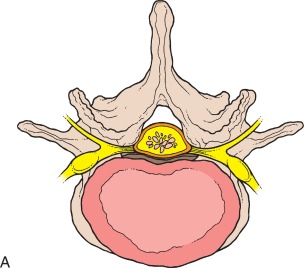 Lumbar Spinal Stenosis - an overview   ScienceDirect Topics