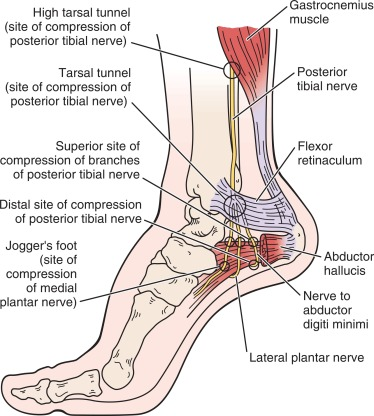 Tarsal Tunnel Syndrome - an overview | ScienceDirect Topics