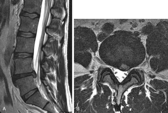 Intervertebral Disk Hernia - an overview | ScienceDirect Topics