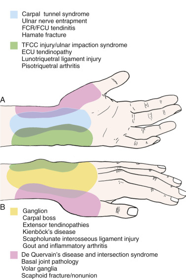 Hand Pain - an overview | ScienceDirect Topics