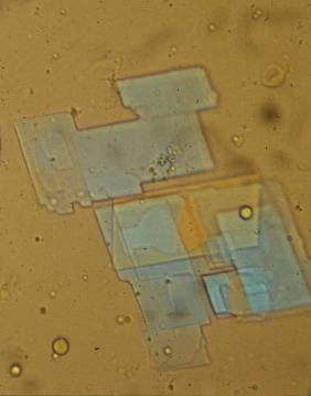 Polarization Microscopy - an overview | ScienceDirect Topics