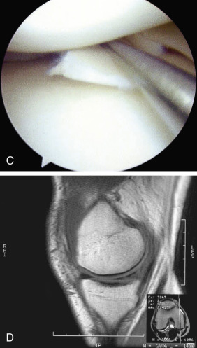 Knee Meniscus Rupture - an overview | ScienceDirect Topics