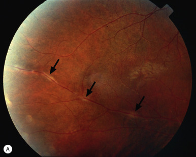 Visual Loss Retinal Disorders Of Neuro Ophthalmic Interest