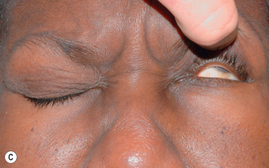 Eyelid and Facial Nerve Disorders - ScienceDirect
