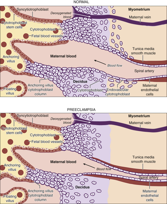 Placental Disease - an overview | ScienceDirect Topics