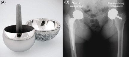 Hip Resurfacing - an overview | ScienceDirect Topics