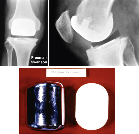 Knee Replacement - an overview | ScienceDirect Topics