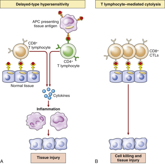 Type IV Hypersensitivity - an overview | ScienceDirect Topics