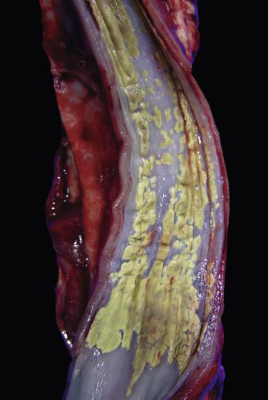 Mannheimia Haemolytica - an overview   ScienceDirect Topics