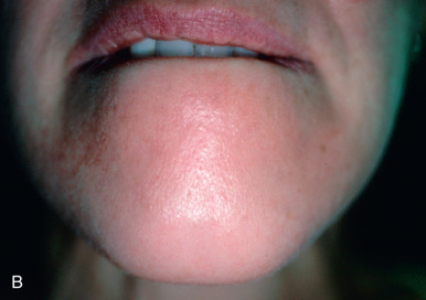 Injectables and Resurfacing Techniques: Botulinum toxin