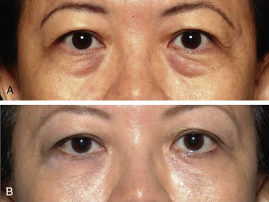 Restylane - an overview | ScienceDirect Topics