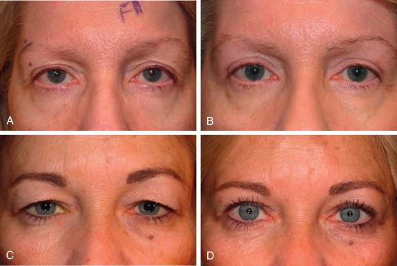 Eyebrow Ptosis - an overview | ScienceDirect Topics