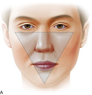 Chin Augmentation - an overview | ScienceDirect Topics