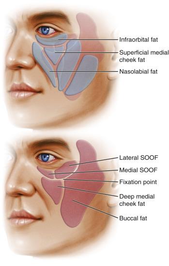 Chin Implant Diagram | Wiring Diagram
