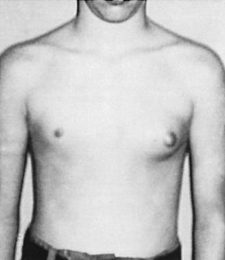 Gynecomastia prosztatagyulladás