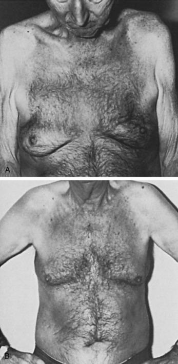 Prostatitis és gynecomastia