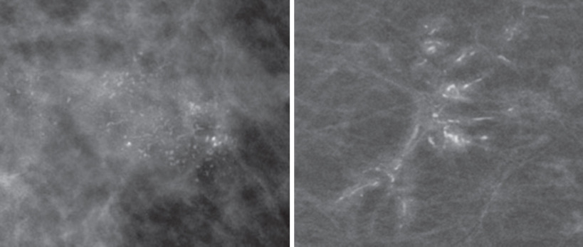 Malignant calcification in breast