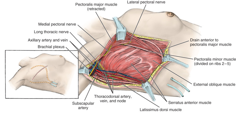 Modified Radical Mastectomy And Simple Mastectomy Sciencedirect