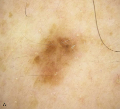 Dysplastic Nevus Syndrome - an overview | ScienceDirect Topics