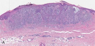 Nodular Melanoma - an overview | ScienceDirect Topics