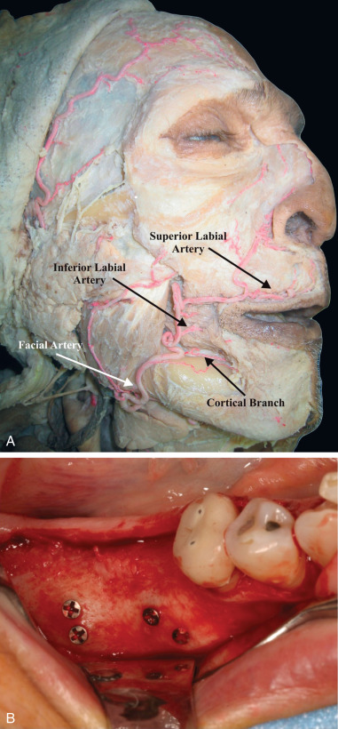 Facial Artery - an overview   ScienceDirect Topics