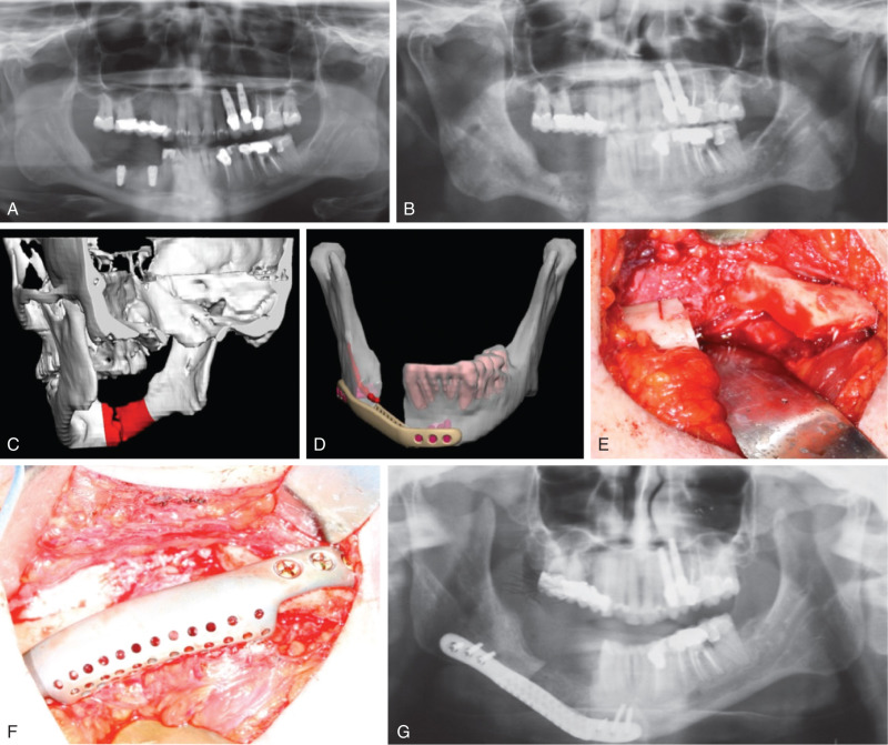Jaw Fracture - an overview | ScienceDirect Topics