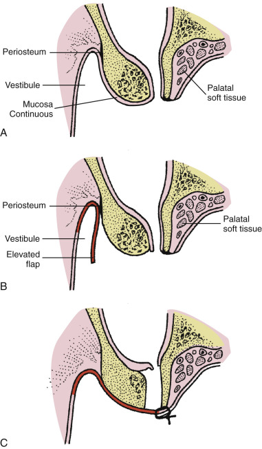 Oroantral Fistula - an overview   ScienceDirect Topics