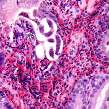 strongyloidosis nematodosis