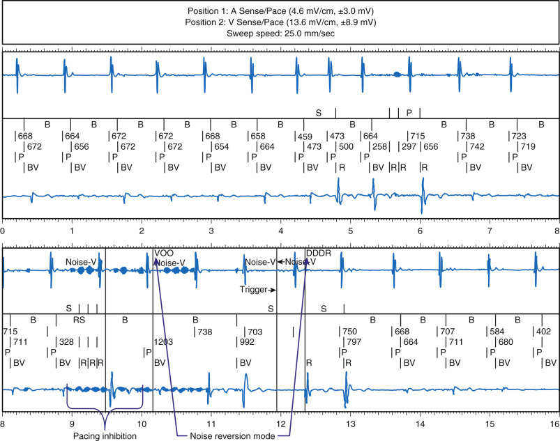 Electromagnetic Field - an overview   ScienceDirect Topics