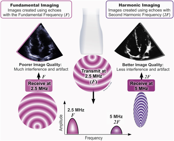 Harmonic Imaging - an overview | ScienceDirect Topics