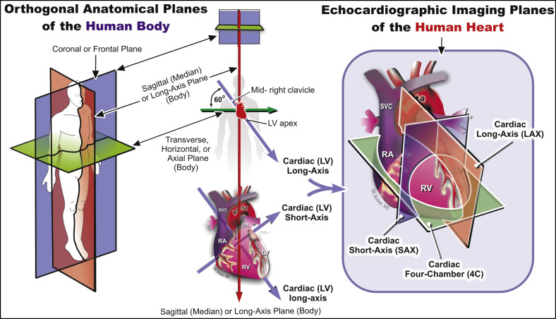 Color Doppler Echocardiography - an overview | ScienceDirect