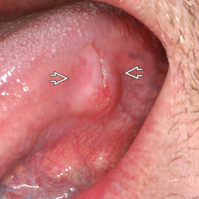Cancer on tip of tongue,