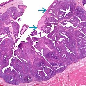 szélessávú vérszegénység humán papillomavírus krém