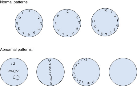 Clock Drawing Test - an overview | ScienceDirect Topics