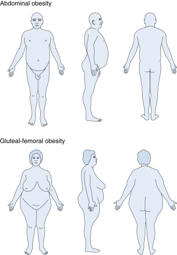 Hip Circumference - an overview | ScienceDirect Topics