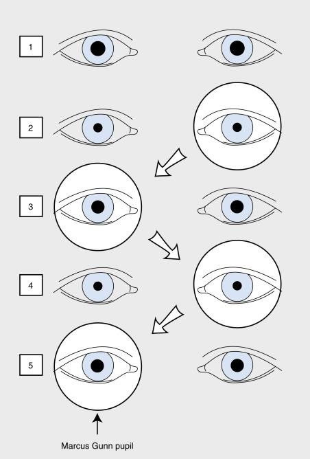 Afferent Pupillary Defect