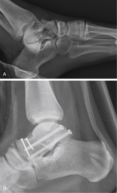 Talus Fracture - an overview   ScienceDirect Topics