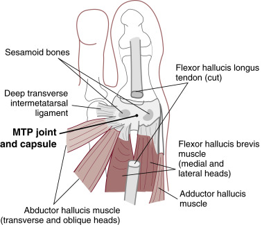 Adductor Hallucis Muscle An Overview Sciencedirect Topics