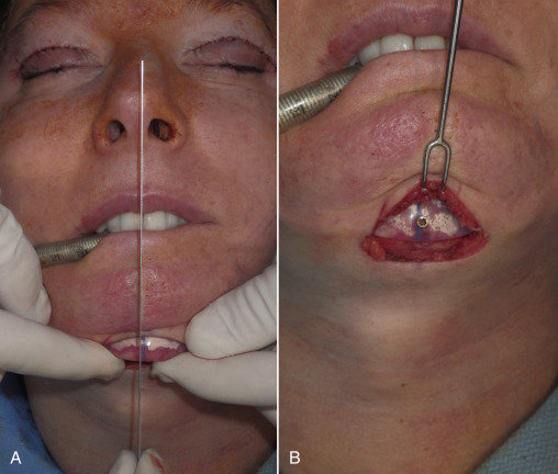 Chin Implant - an overview | ScienceDirect Topics