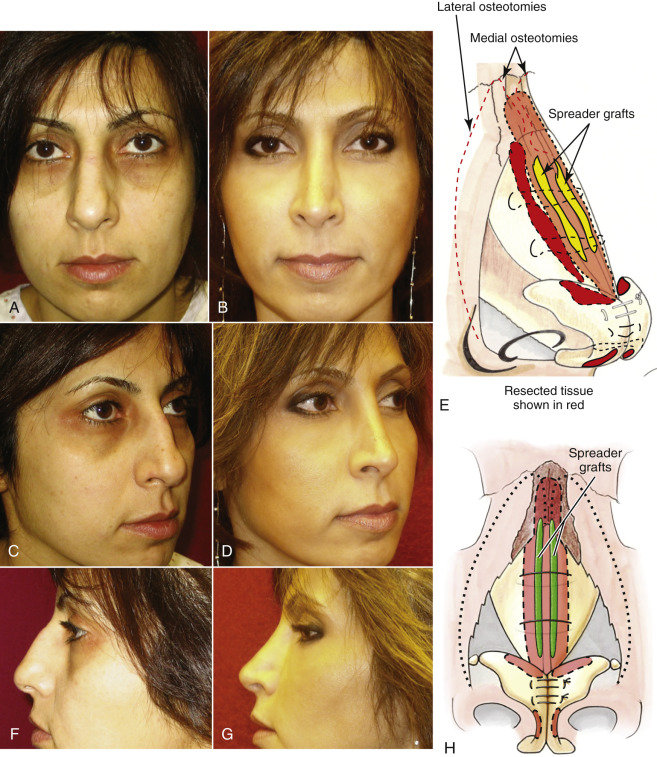 Rhinoplasty - an overview | ScienceDirect Topics
