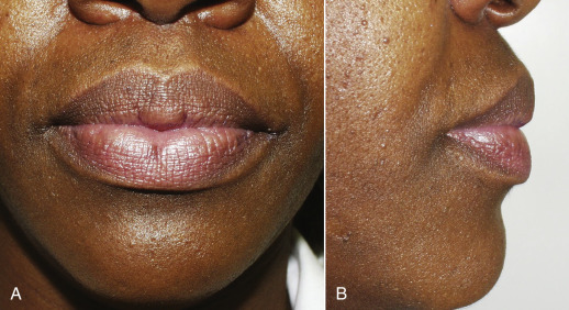 Lip Augmentation - an overview | ScienceDirect Topics