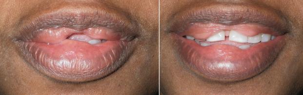 Lip Augmentation - an overview | ScienceDirect Topics