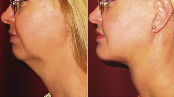 Chin Implant - an overview   ScienceDirect Topics