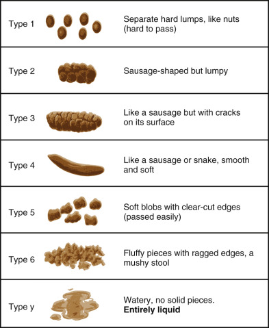 Functional Constipation - an overview | ScienceDirect Topics