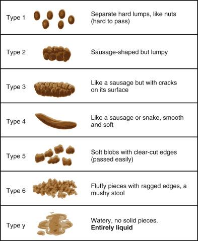 Anal retention constipation pics 118