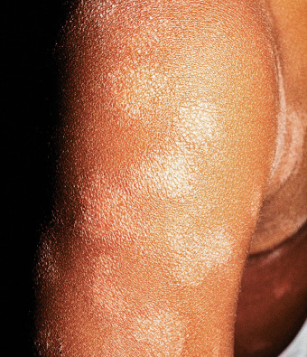 Pityriasis - an overview | ScienceDirect Topics