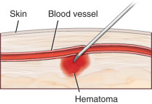 Hematoma - an overview | ScienceDirect Topics