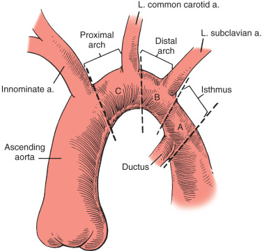 Interrupted Aortic Arch - an overview | ScienceDirect Topics